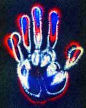 kirlianfingers